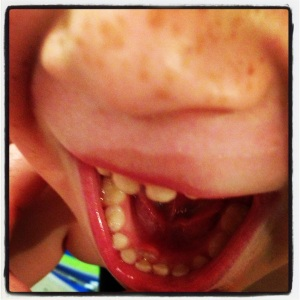 wiggly wobbly tooth with 'adult' tooth behind!